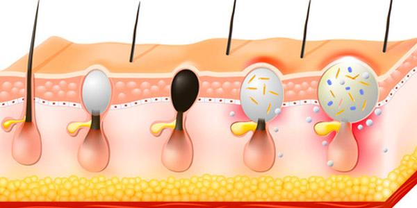 Behandlung Haarausfall